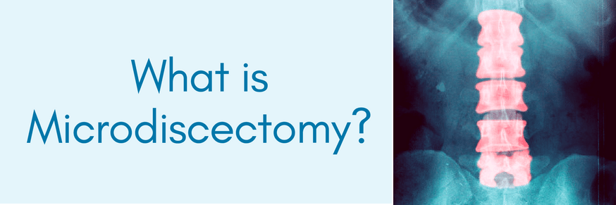 what is microdiscectomy