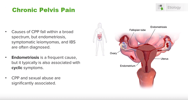 chronic pelvis pain