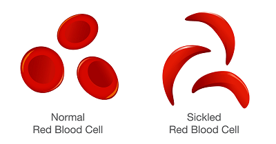 About Sickle Cell Disease