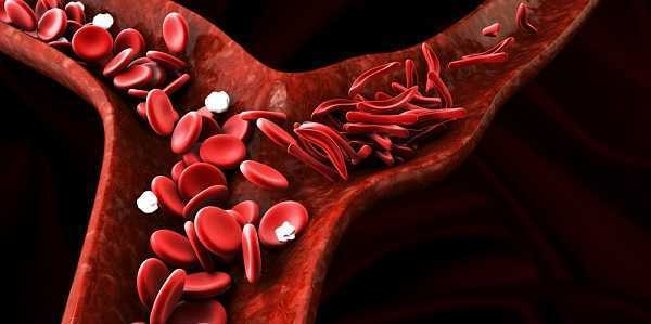 about Sickle cell anemia