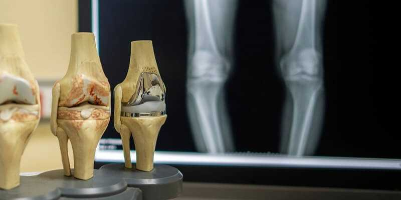 The model of knee joint shown the process of osteoarthritis of knee and total knee replacement surgery