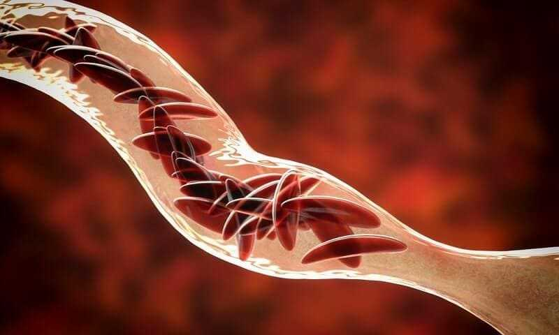 Clumps of sickle cell block the blood vessel