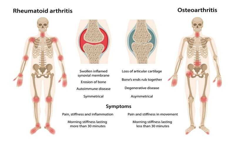Images of joints affected by rheumatoid arthritis and osteoarthritis
