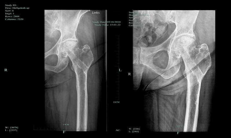 Necrosis of the femoral head and progress of the healing process of greater trochanter fracture