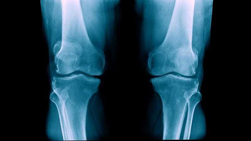 degenerative arthritis says that this is also known as osteoarthritis