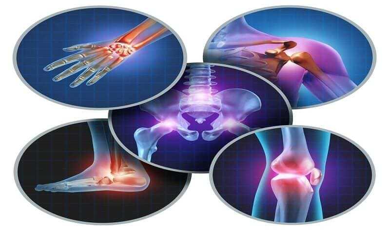 Arthritis as a Common Disease