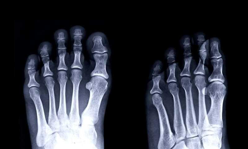 Gouty arthritis film x-ray