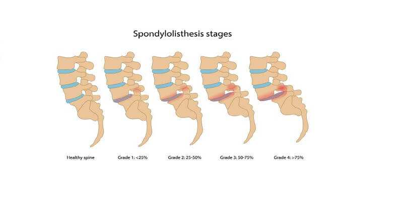 Spondylolisthesis stages