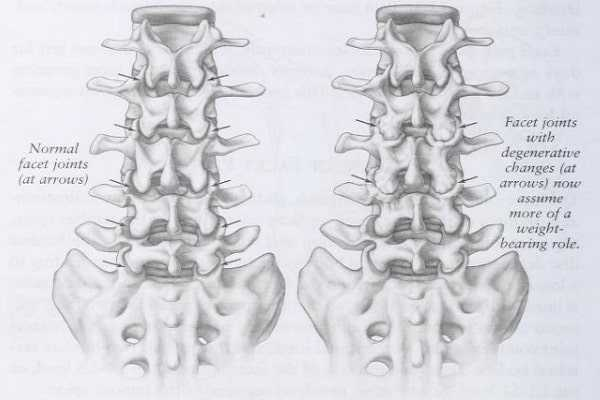 back view of normal and degenerative facet joints