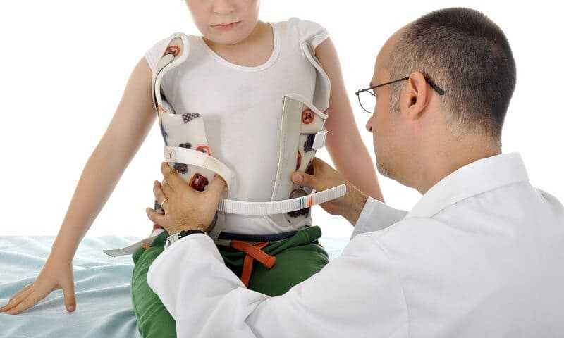 information about scoliosis brace