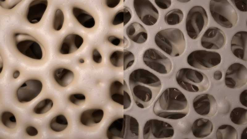 healthy and osteoporosis bone