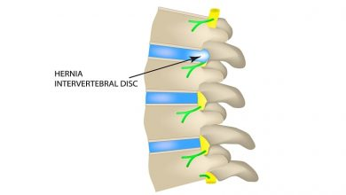 Acute Intervertebral Disc Herniation