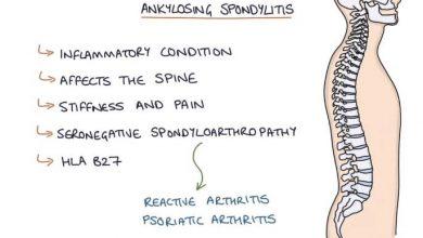 What is Ankylosing Spondylitis