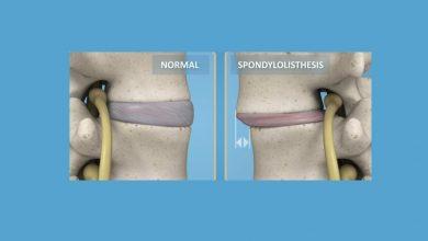 Back Surgery for Spondylolisthesis