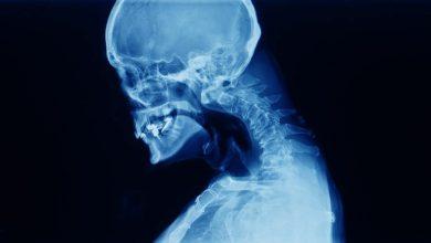 Cervical spine x-ray showing spondylosis