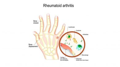 hand with rheumatoid arthritis and typical joint swelling