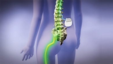 Spinal Cord Stimulation Trials Fail to Convince Patients