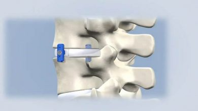 VerteLoc System for Spinal Stenosis Surgery