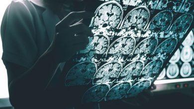 alzheimer's disease on MRI